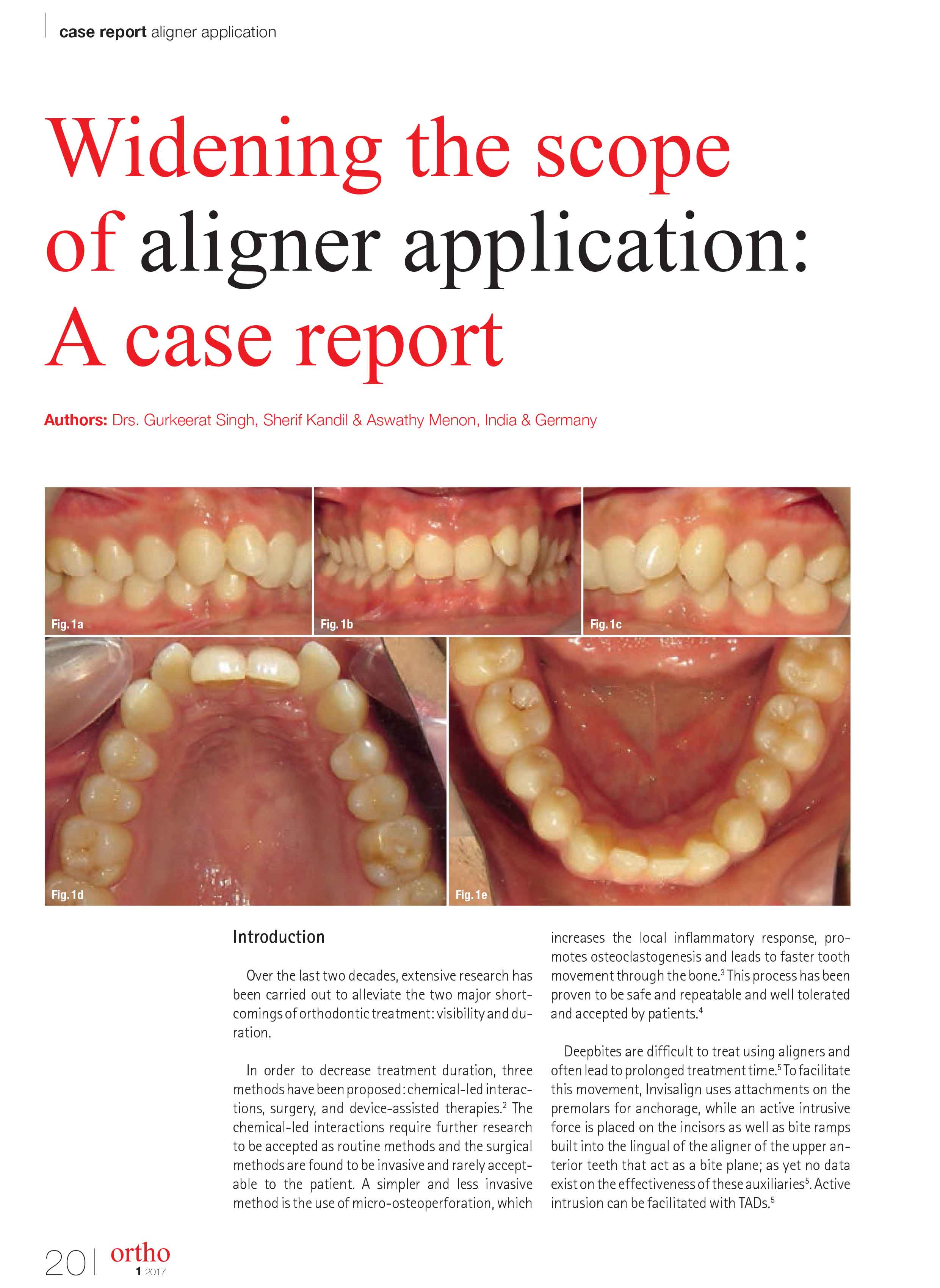 Widening the scope of aligner application